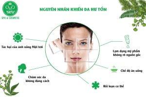 Bản chất của nám da
