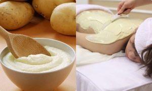 Cách làm trắng da đơn giản từ khoai tây